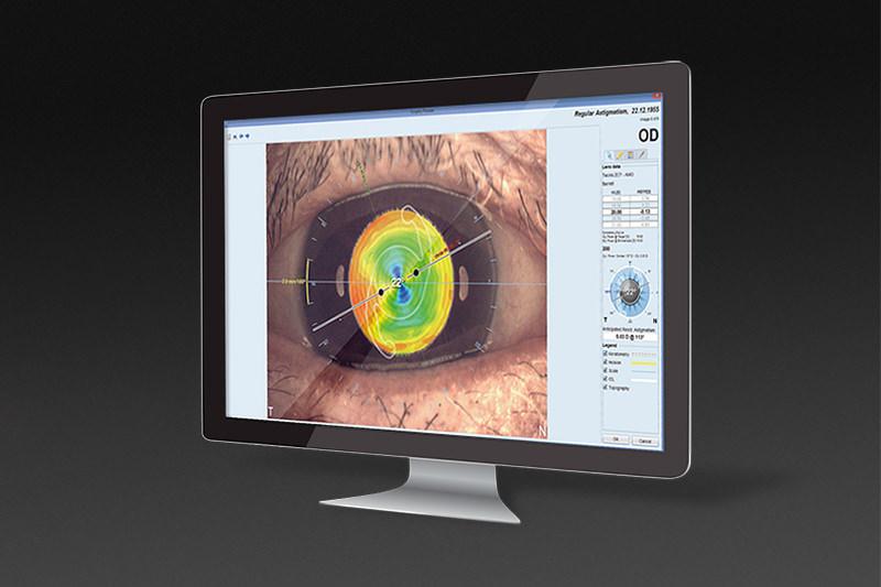 EyeSuite IOL Toric Planner